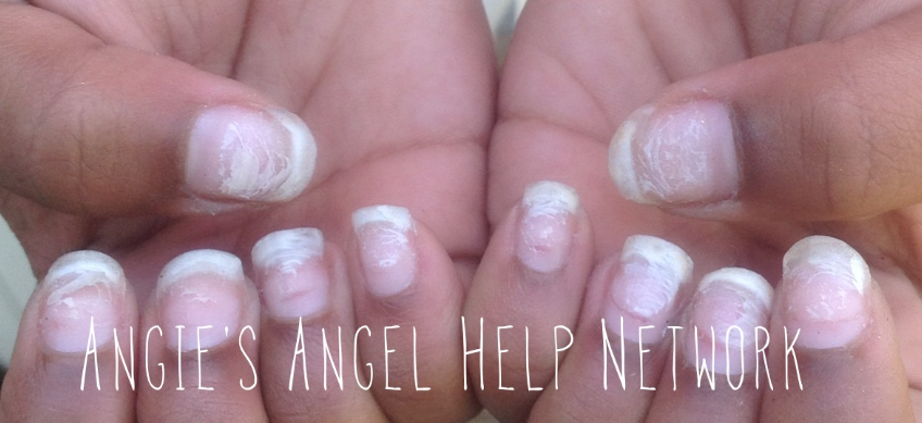 help my nails are paper thin